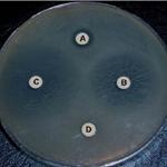 Biosicurezza e uso corretto e razionale degli antibiotici in zootecnia
